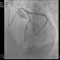 cardiaca_230x230