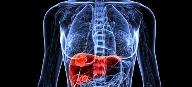 Delimitar los tumores de hígado con un 45% más de precisión